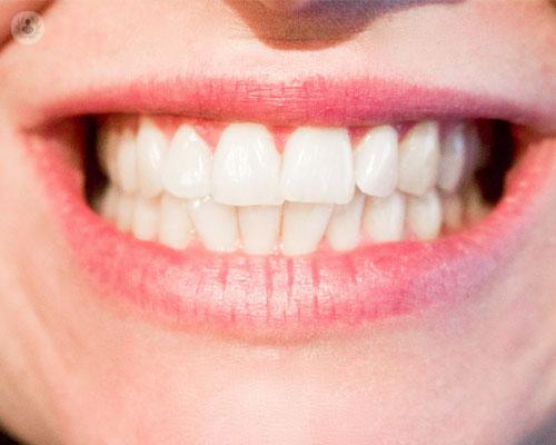 implantes-bueno-sonrisa-dientes