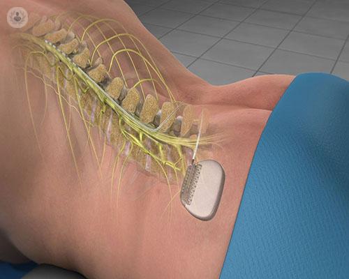 dispositivo-electronico-implantado