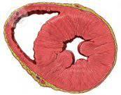 raiz-aortica-arteria