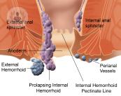 dibujo-hemorroides