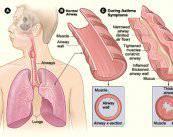dibujo-asma