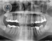 cavidad-bucal-cancer-oral