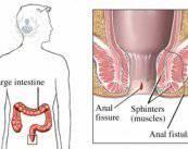 fistula-anal