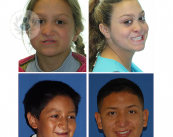 labio-leporino-tratamiento