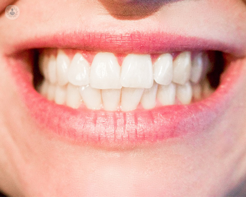 adhesivos-para-protesis-dentales-funcionan