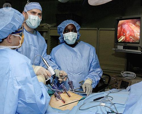 cirugia-laparoscopica-cancer-esofago-tecnica-doctores