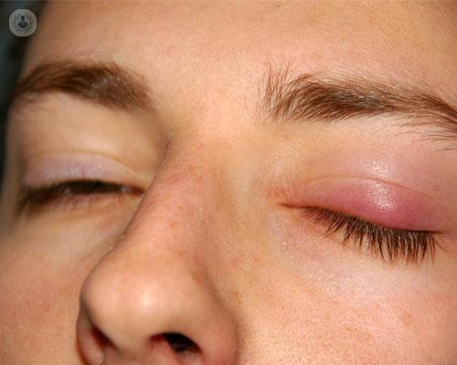 ptosis-cirugia