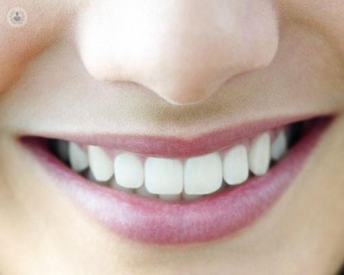 implantes-dentales-en-el-paciente-oncologico imágen de artículo