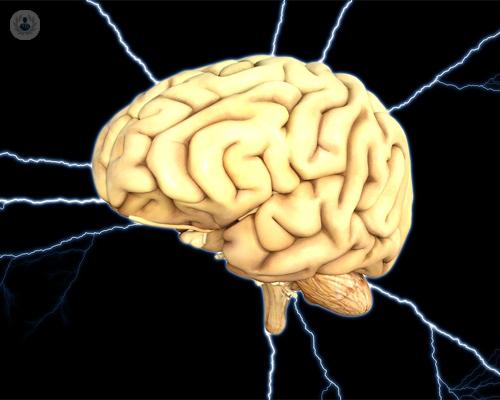 estimulacion-cerebral-profunda