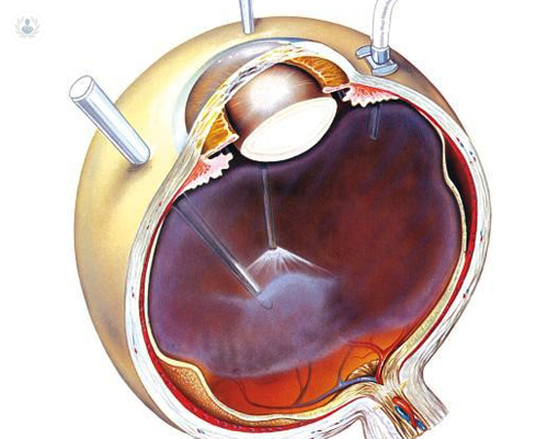cirugia-ocular-vitrectomia-vitreo-retina-desprendimiento