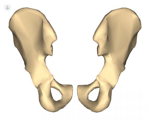 fractura-de-cadera