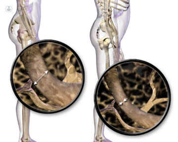 esqueleto-con-osteoporosis