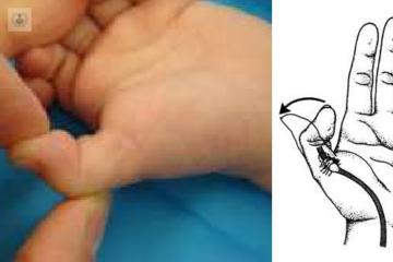 pulgar-pulgar-en-resorte-mano-dedo-traumatologia-infantil