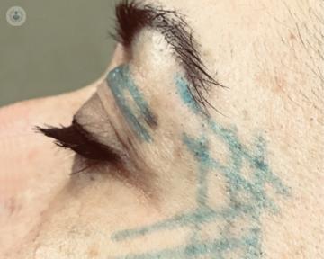 rostro-hilos-tensores