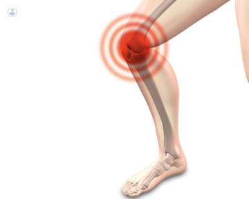 tratamientos-artrosis-unidad-del-dolor