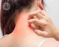 mujer-con-eczema