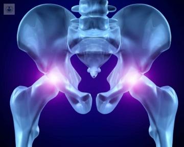 artrosis-de-cadera-tratamiento-natural