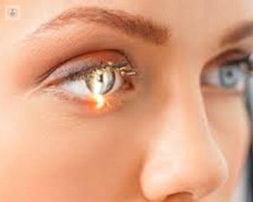vitrectomia-anterior