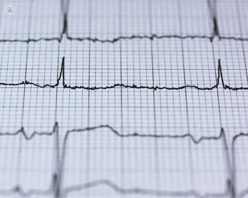 diagnóstico cardiología