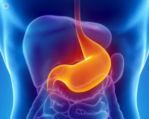 síntomas de reflujo gastroesofágico